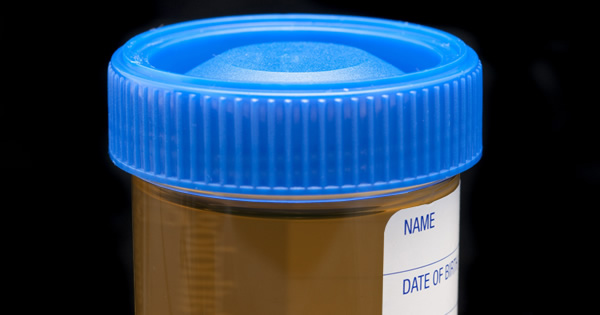 Dark Colored Urine