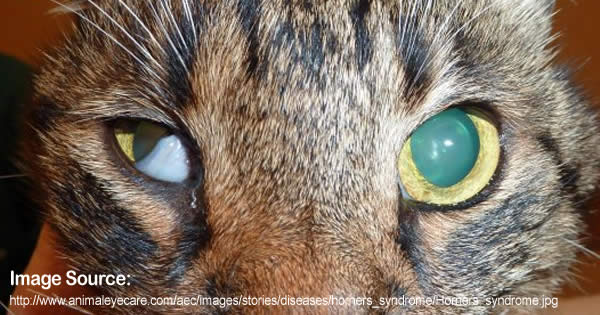 Drooping Of Eyelid